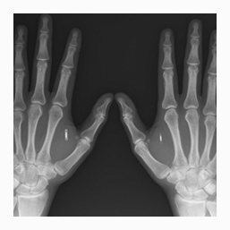 X-Ray Scanning Services in Oxfordshire UK